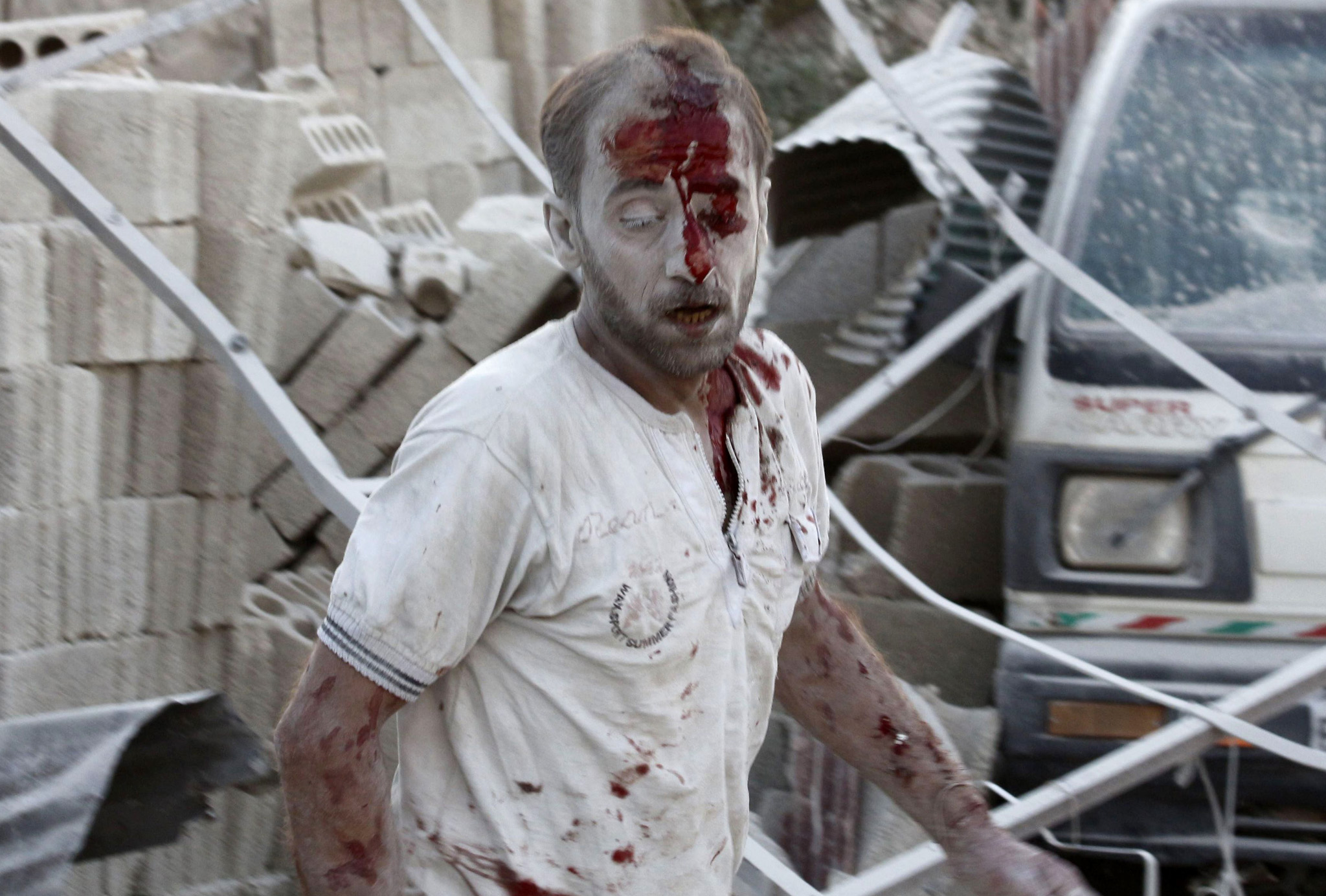 An injured man reacts at a damaged site hit by what activists said were two barrel bombs thrown by forces loyal to Syria's President Bashar al-Assad in the Qadi Askar district of Aleppo August 10, 2014. REUTERS/Rami Zayat