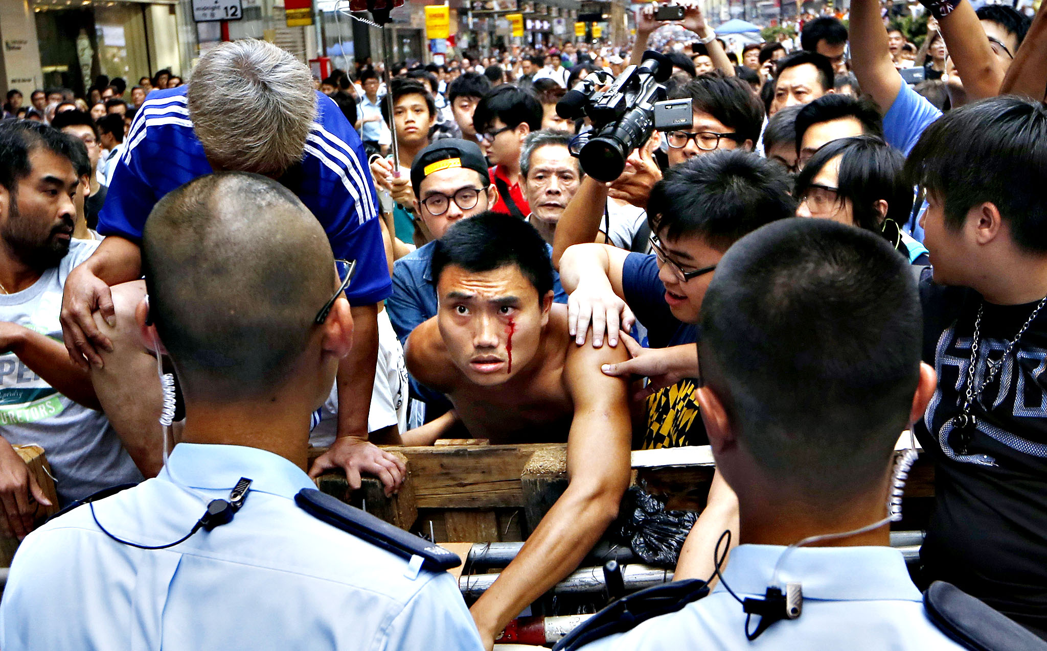 A protester bleeds from his face as he tries to stop a group of anti-occupied taxi drivers trying to remove the barricades which block off main roads, near the line of riot police at the occupied area, in the Mong Kok district of Hong Kong, Wednesday, Oct. 22, 2014. On one side of the table sat the idealistic and earnest young students in jeans and black T-shirts, knapsacks by their sides. Facing them was the line-up of seasoned government officials in their formal suits.