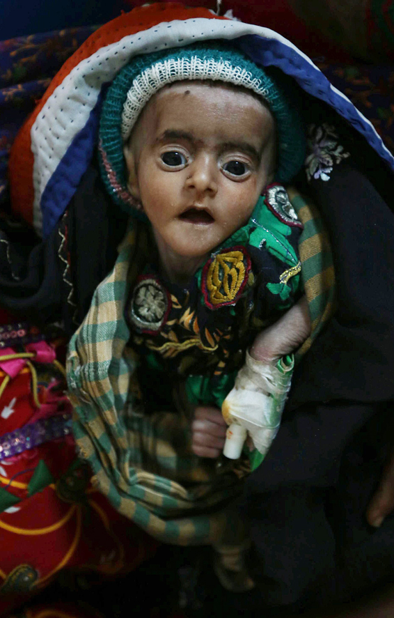 Famine in Pakistan...epa04587737 A child affected from famine waits to get medical treatment in Tharparkar, Sindh province, Pakistan, 27 January 2015. Reports state that some 47 people, most of them infants, died in January due to malnutrition in the famine-hit area of the Sindh province.