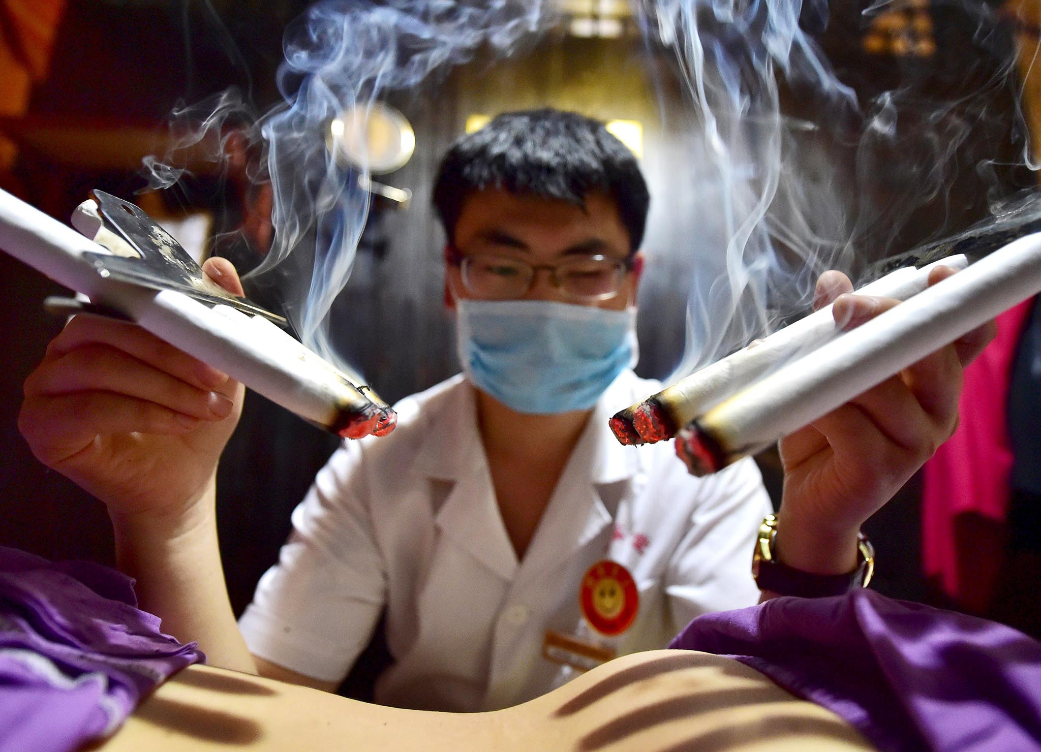 A therapist applies traditional moxibustion treatment on a patient in Yiwu