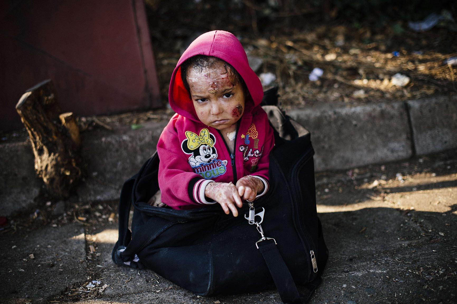 Syrian child injured