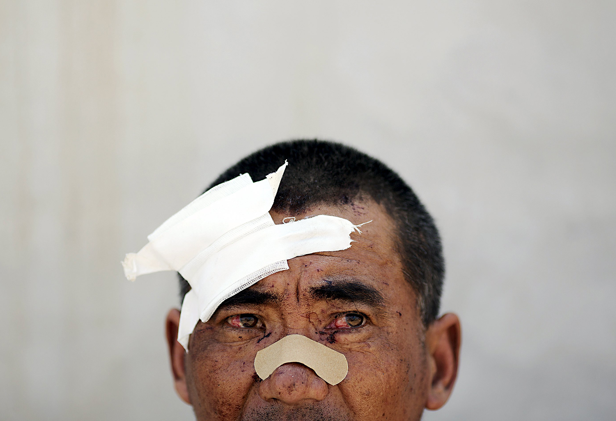 An injured man evacuated from the residential area near the explosion site looks towards pluming smoke in Binhai new district in Tianjin, China August 13, 2015. The death toll from two huge explosions that tore through an industrial area in the northeastern Chinese port of Tianjin more than doubled to 44, the official Xinhua news agency said on Thursday.  REUTERS/Damir Sagolj