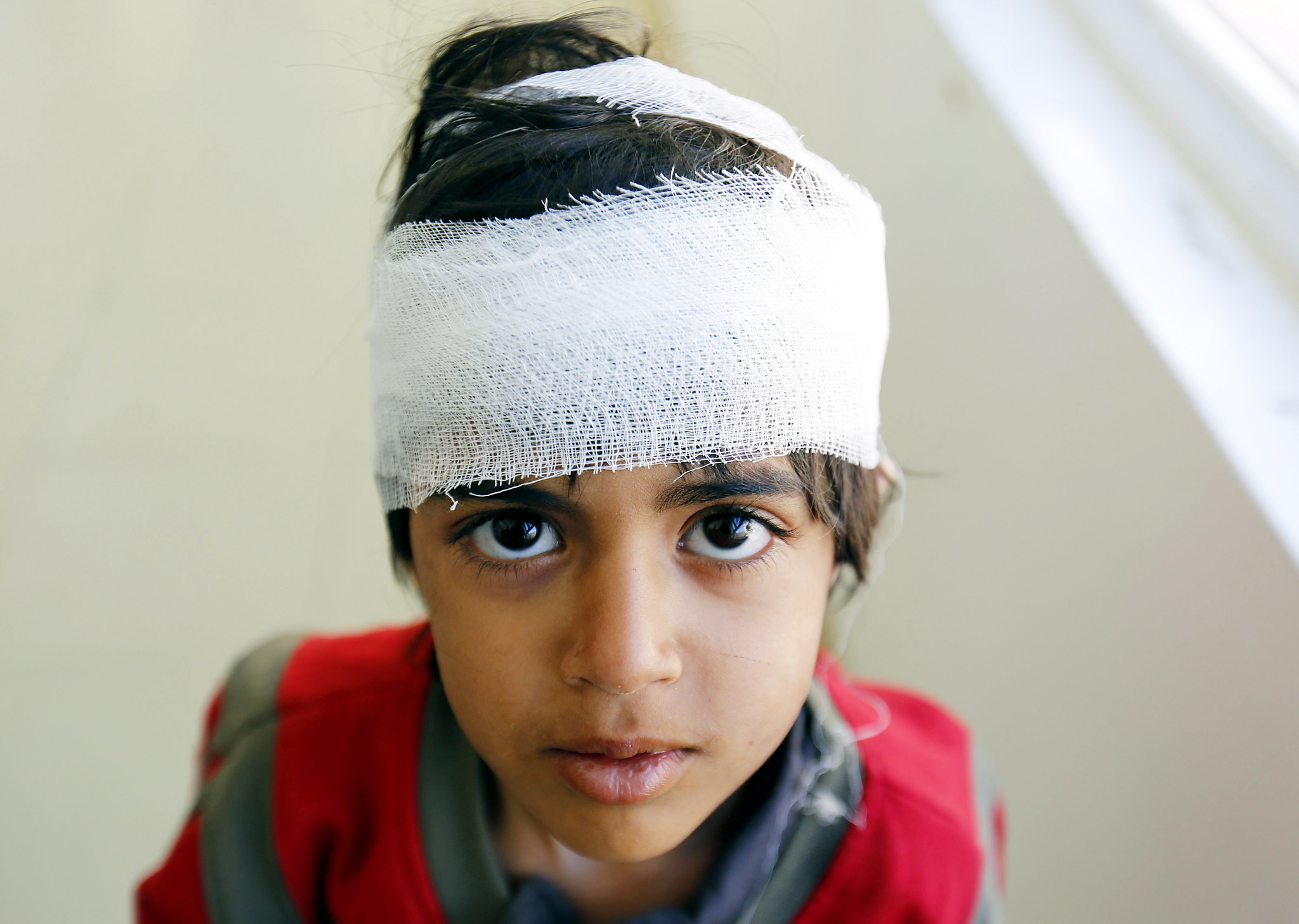 Saudi-led ongoing conflict victims in Yemen...epa05149787 A wounded boy poses for a picture at a hospital after he was injured in ongoing conflict, in Sanaía, Yemen, 08 February 2016. United Nations figures show nearly 6000 people have been killed and more than 32,000 injured so far in the ten-month conflict in the war-torn Yemen since March when the Saudi-led coalition launched a military campaign against the Shiite Houthi rebels.  EPA/YAHYA ARHAB