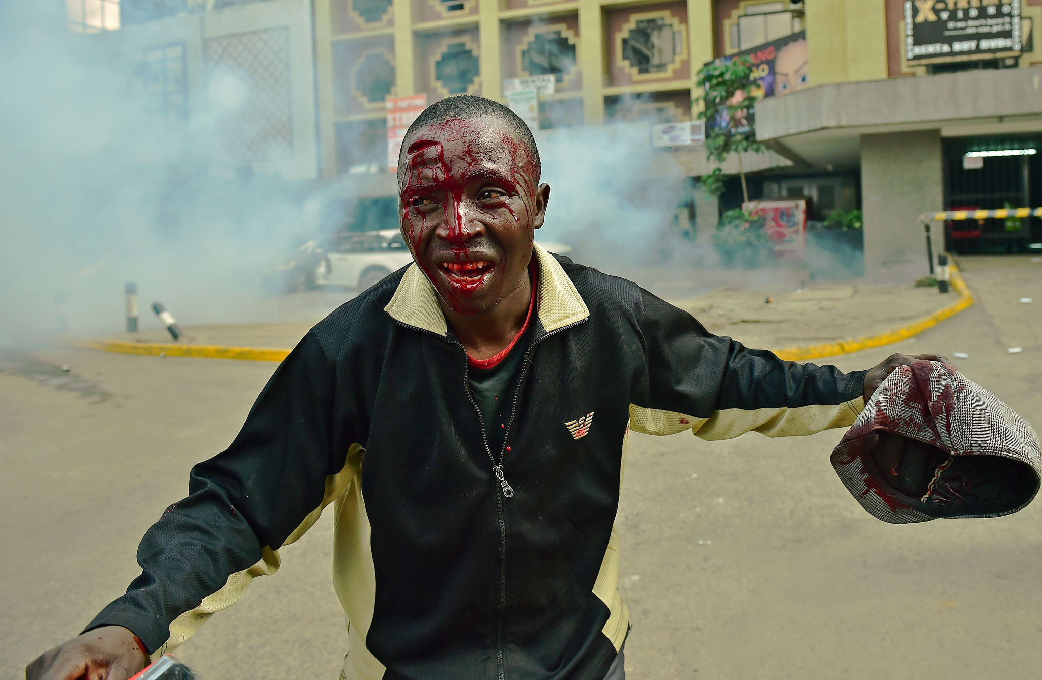 A man injured following clashes with Kenyan riot police officers, runs away from teargas, during a demonstration of Kenya's opposition supporters in Nairobi, on May 16, 2016.  Opposition protestors led by former Prime Minister Raila Odinga gathered outside the Indepedent Electoral and Boundaries Comission building to demand the dismissal of IEBC commissioners, after alleged bias towards the ruling Jubillee Alliance Party. / AFP PHOTO / CARL DE SOUZACARL DE SOUZA/AFP/Getty Images
