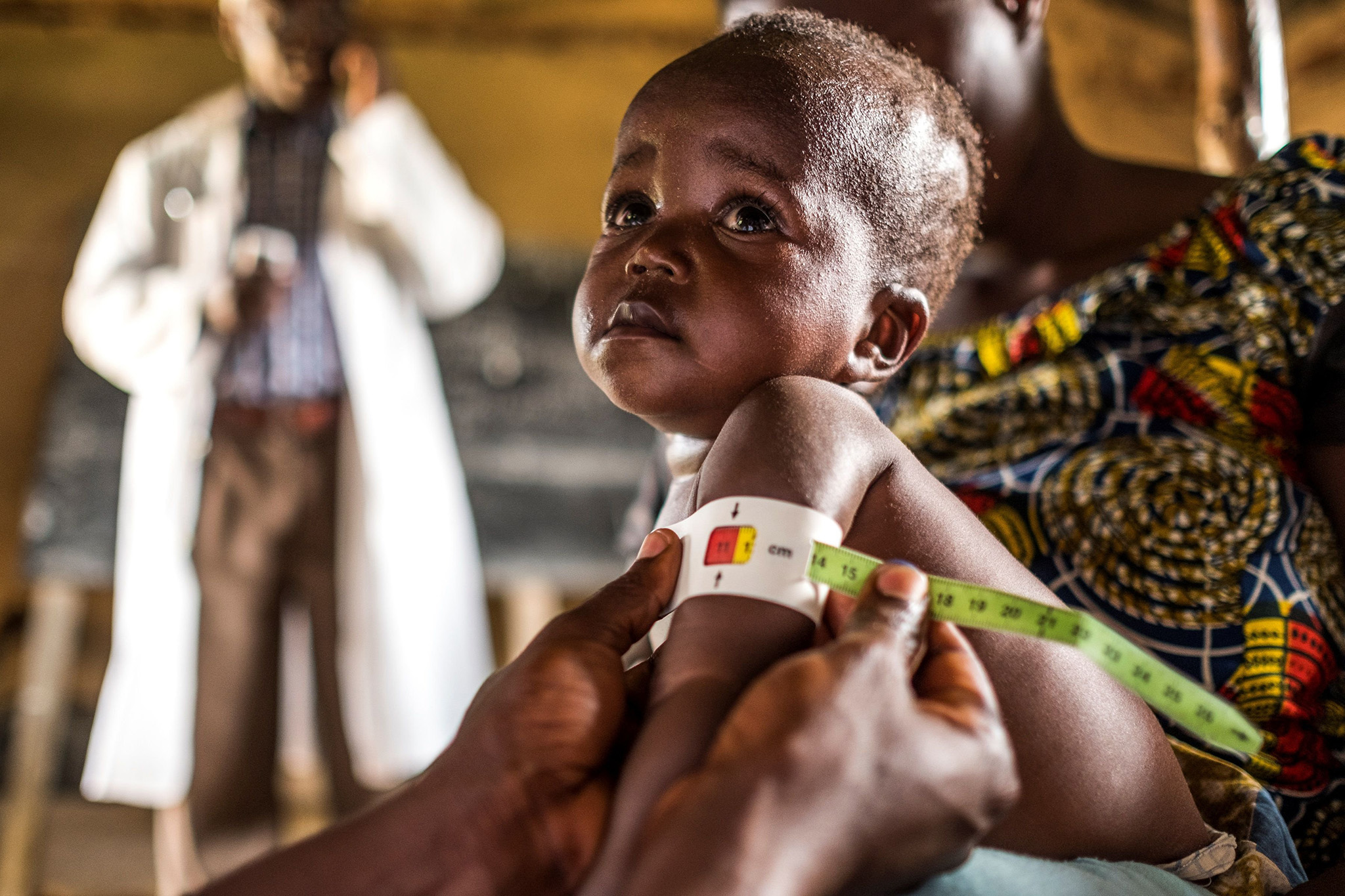 - Health personnel measures a child as part of a program for malnourished children sponsored by the World Food Program at a Health Center in Mavivi, Beni territory, Eastern D.R.Congo, on November 15, 2016.  Malnutrition is very common in the country and the problem has been amplified lately in the area by the influx of displaced people fleeing a surge in violence. / AFP PHOTO / Eduardo Soteras / The erroneous mention[s] appearing in the metadata of this photo by Eduardo Soteras has been modified in AFP systems in the following manner: [Mavivi] instead of [Mbau]. Please immediately remove the erroneous mention[s] from all your online services and delete it (them) from your servers. If you have been authorized by AFP to distribute it (them) to third parties, please ensure that the same actions are carried out by them. Failure to promptly comply with these instructions will entail liability on your part for any continued or post notification usage. Therefore we thank you very much for all your attention and prompt action. We are sorry for the inconvenience this notification may cause and remain at your disposal for any further information you may require.EDUARDO SOTERAS/AFP/Getty Images