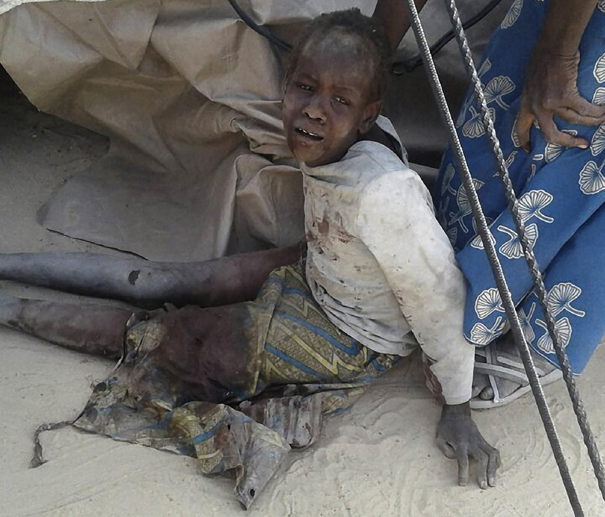 "TOPSHOT - This handout image received courtesy of Doctors Without Border (MSF) on January 17, 2017, shows a wounded child after an air force jet accidentally bombarded a camp for those displaced by Boko Haram Islamists, in Rann, northeast Nigeria. At least 52 aid workers and civilians were killed on January 17, 2017, when an air force jet accidentally bombed a camp in northeast Nigeria instead of Boko Haram militants, medical charity MSF said. / AFP PHOTO / Médecins sans Frontières (MSF) / Handout / RESTRICTED TO EDITORIAL USE - MANDATORY CREDIT ""AFP PHOTO / DOCTORS WITHOUT BORDERS (MSF)"